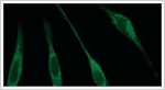 ナノゲル工学:DDSと再生医療への応用